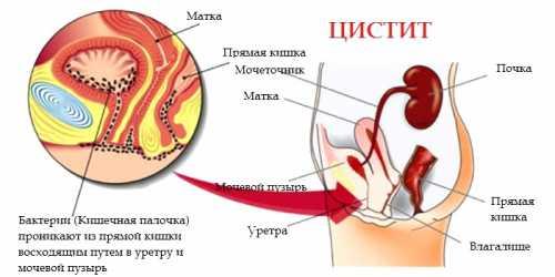 профилактика эндометрита у собак